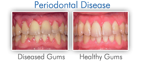 Gum-Disease-Pictures Periodontal Treatment
