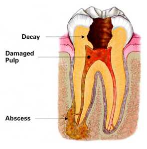 Root-canal-infect Endodontic Dentistry