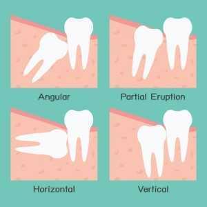 Wisdom-Teeth-Removal-300x300 Wisdom Teeth Removal