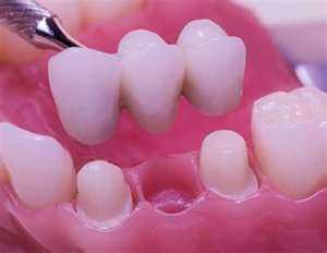 bridge11-300x232 General Dentistry