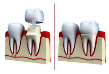 crown1 Dental Crowns and Bridges