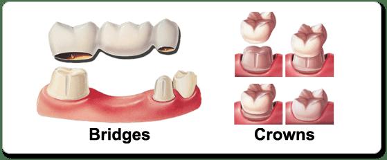 crowns-and-bridges Dental Crowns and Bridges