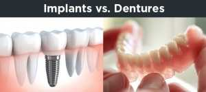 implants-vs-dentures-300x134 Implant Dentistry