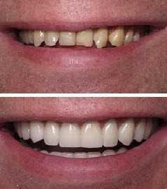 smile-makeover-21 Smile Makeover