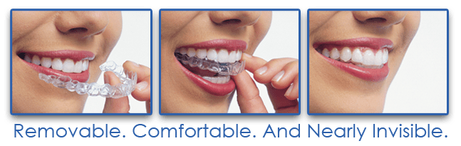 three-pic Invisalign/ClearCorrect