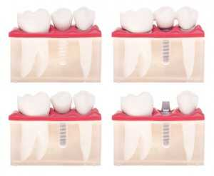 Advantages-of-Implant-Dentistry-300x247 Dental Implants