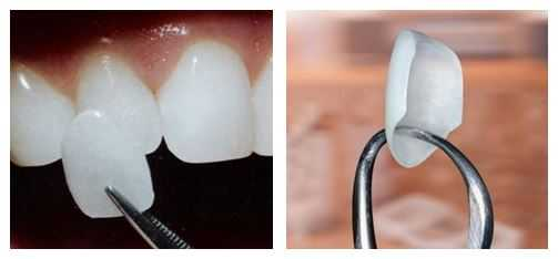 Dental-Porcelain-Veneers Porcelain Veneers