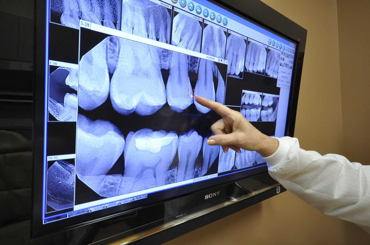 digital-xray Digital X-Rays
