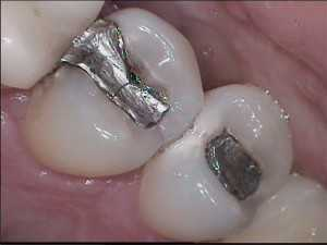 silver-fillings-300x225 Silver Fillings