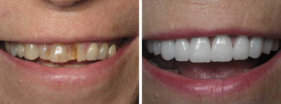 smile-makeover Smile Makeover
