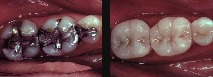 white-fillings1 General Dentistry