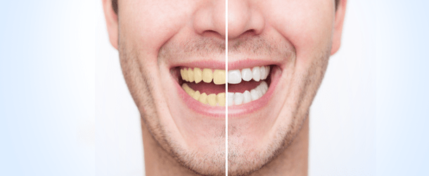 whitening-male Cosmetic Dentistry