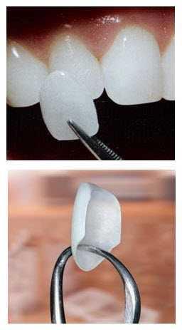Dental-Porcelain-Veneers Porcelain Veneers