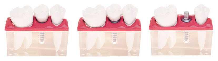 implant-dental-1 Dental Implant Restorations